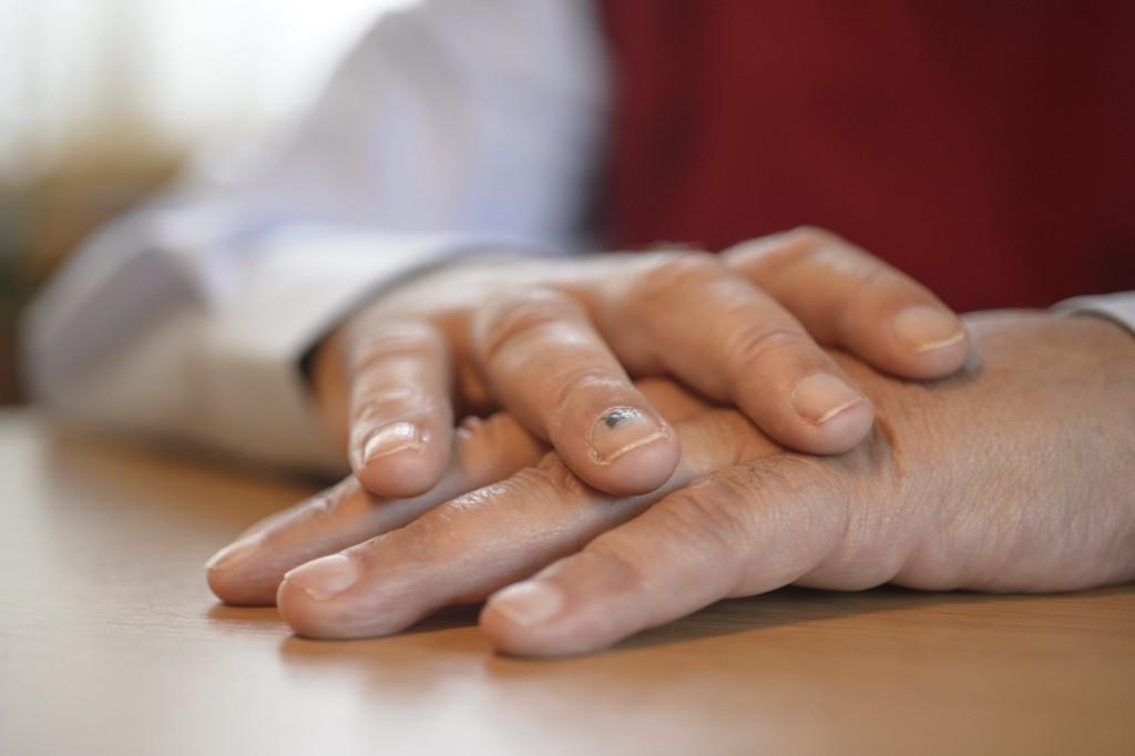 Transplantierte Hände von Theo Kelz